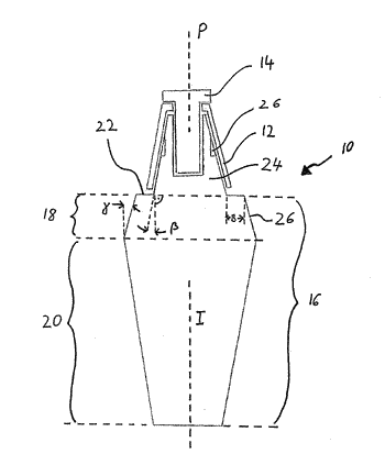 System and dental implant for reducing losses of dental implants or dental prostheses