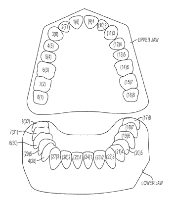 Automated treatment staging for teeth