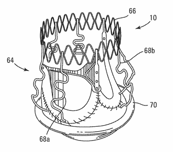 Expandable valve prosthesis with sealing mechanism