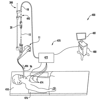 Microwave ablation catheter, handle, and system