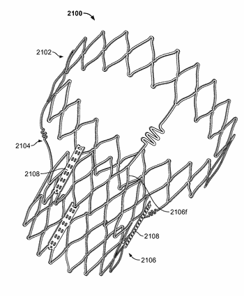 Stent features for collapsible prosthetic heart valves
