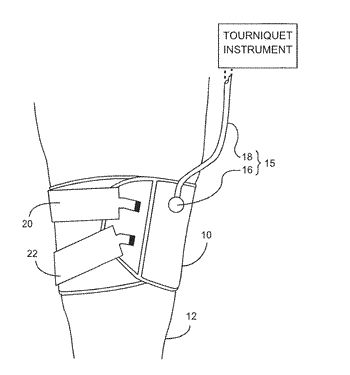 Method and apparatus for shielding engagement of a tourniquet cuff