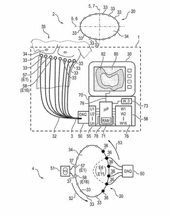 Device and method for determining a circumferential shape of an electrode array for electrical impedance ...