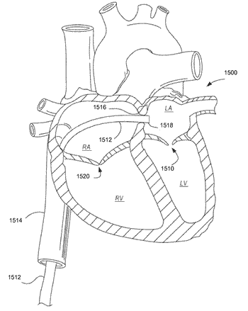 Methods, devices, and systems for percutaneously anchoring annuloplasty rings
