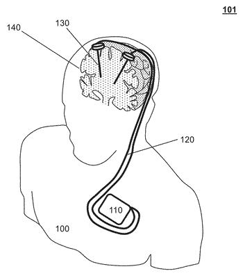 Treatment of autoimmune diseases with deep brain stimulation