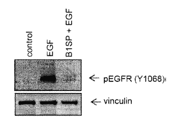 B1sp fusion protein therapeutics, methods, and uses