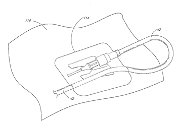 Medical device securement system and method
